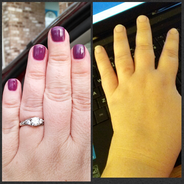 The picture on the left is my hand now. I'm wearing my wring and have defined knuckles. The picture on the right is not one I've shared much. It's my hand back in April. Notice how every single joint is swollen and I was not able to wear my wedding ring. The prednisone and other medications are helping that.