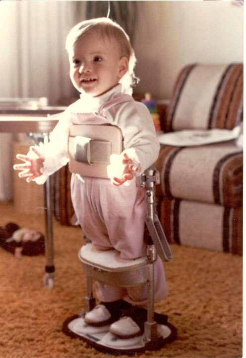 When I was a toddler, I would be placed in this device that would help me learn to bear weight on my legs. I otherwise would not have been able to do this because of the Spina Bifida.